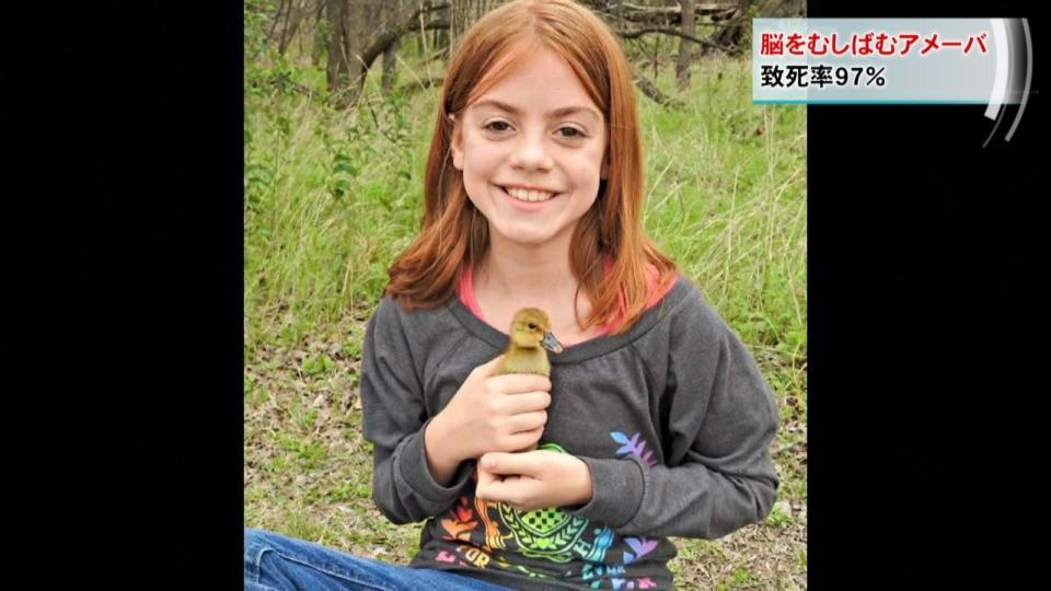 脳をむしばむアメーバで10歳少女死亡