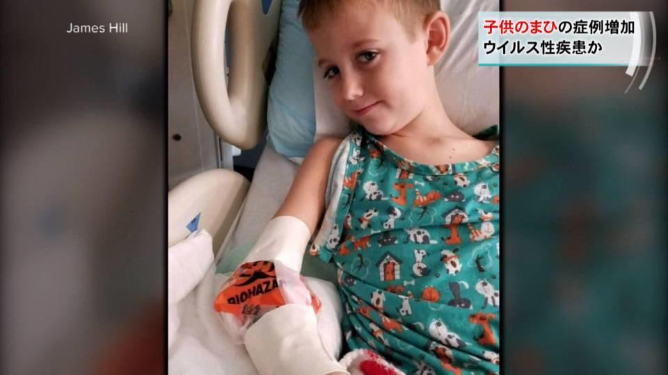 子供のまひ増加 まれな疾患「AFM」とは / AFM cases growing