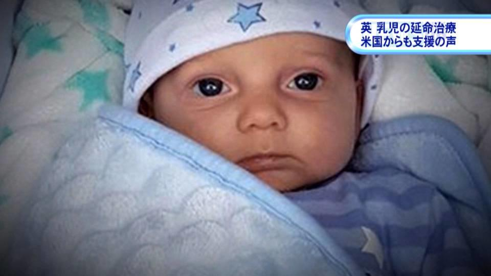 英 難病の乳児の延命治療に米国からも支援の声