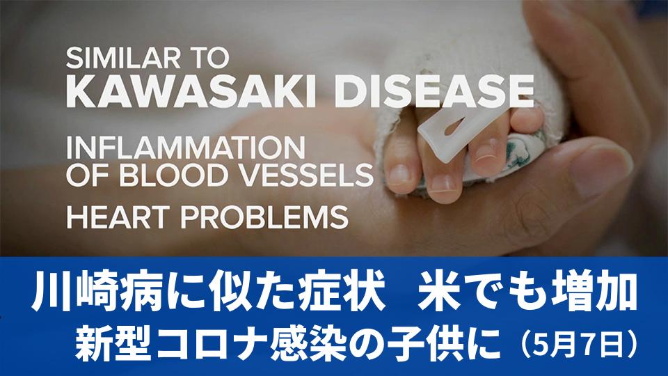 5月7日 米でも増加  新型コロナ感染の子供に川崎病に似た症状